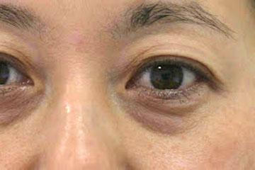 眼の下の眼袋