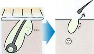 脱毛の原理1