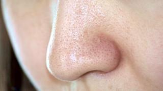 角栓の酸化やメラニン毛穴